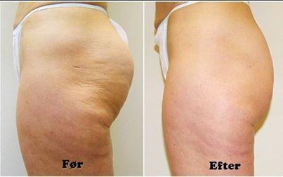 behandling mot celluliter